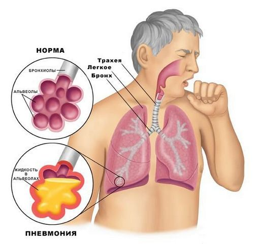 Болезнь плевральной области - пневмония